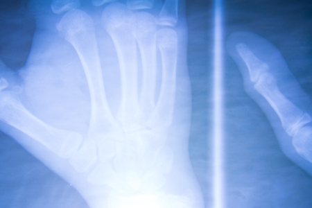 radiogram: X-Ray image of human hands
