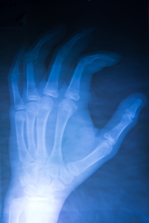 radiological: X-Ray image of human hands