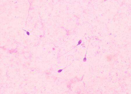 spermatozoa: human sperms fine with microscope in laboratory.
