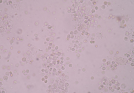moderate: Moderate white blood cells,red blood cells,bacteria cells in urine analysis fine with microscope