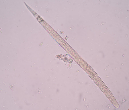 infective: Strongyloides stercoralis is a human parasitic roundworm causing the disease strongyloidiasis. Stock Photo