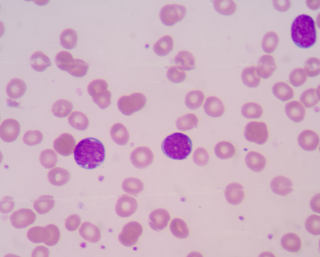 aml: Acute myelogenous leukemia (AML).Most AML subtypes are distinguished from other related blood disorders by the presence of more than 20% blasts in the bone marrow. Stock Photo