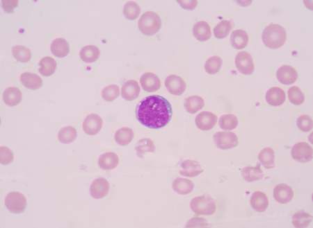 blood smear is often used as a follow-up test to abnormal results on a complete blood count (CBC) to evaluate the different types of blood cells.