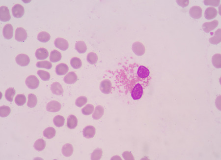vesicles: eosinophil granulocytes. type of White Blood Cell that responsible for combating multicellular parasites, they also control mechanisms associated with allergy and asthma