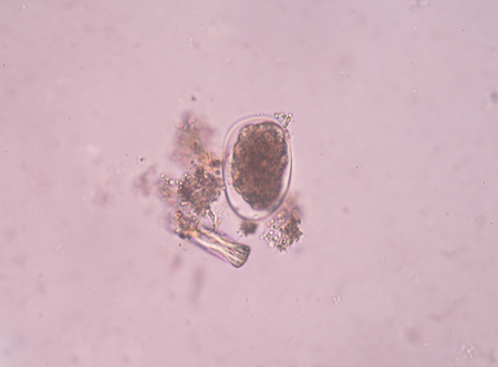 anal: Egg parasite in stool exam real sample.