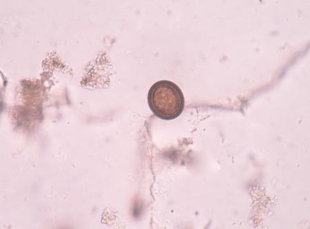 histology: Egg parasite in stool exam real sample.