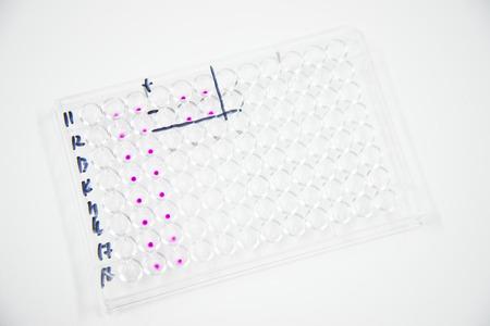 micropipette: micro plate in laboratory.