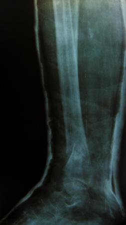 X-ray of the leg Stock Photo