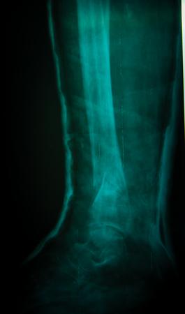 shadowgraph: X-ray of the leg Stock Photo