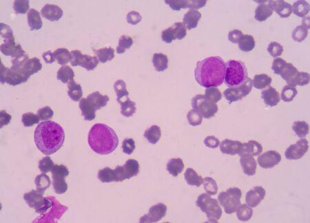 leucemia: Las células de leucemia