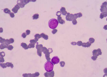 leucemia: Las c�lulas de leucemia