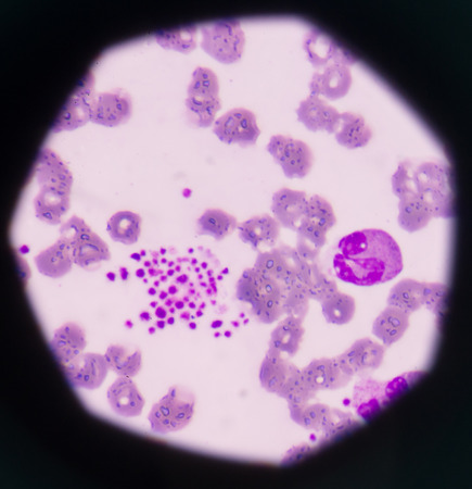 progenitor: Pseudothrombocytopenia or platelet clumping as a possible cause of low platelet count in patients with viral infection.