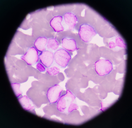 abnormal cells: Blast cells in leukemia.blood smear is often used as a follow-up test to abnormal results on a complete blood count (CBC) to evaluate the different types of blood cells.