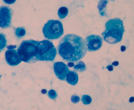 killer cells: Cancer Cell in blood cells human showing abnormal cells. Stock Photo
