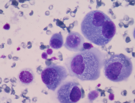 cancer screening: Cancer Cell in blood cells human showing abnormal cells. Stock Photo