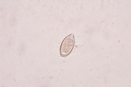 infective: Egg parasite in stool human sample. Stock Photo