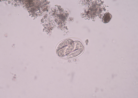 biology instruction: Hookworm is a parasitic nematode that lives in the small intestine of its host, which may be a mammal such as a dog, cat, or human. Stock Photo
