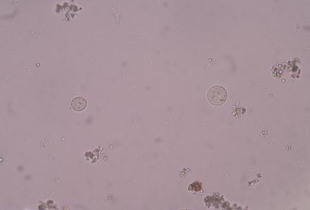 biology instruction: protozoa in stool exam. Stock Photo