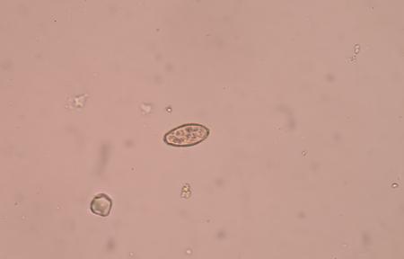 histology: opisthorchis viverrini of egg medical background concept.