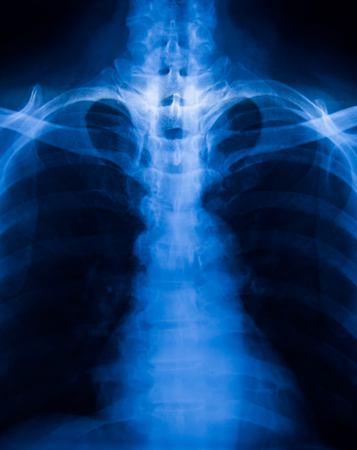radiological: X-Ray Image Of Human Chest for a medical diagnosis.