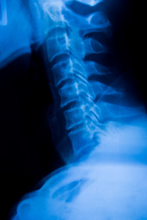 spinal column: X-ray Imaging of Spinal Column