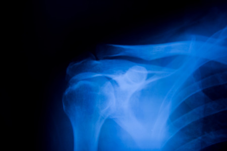 radiological: x-rays image of shoulder joint.