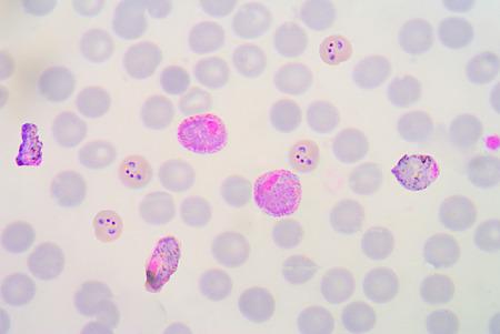 malaria: blood films for Malaria parasite.show malaria pigment.