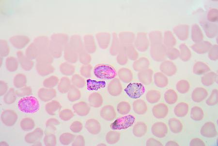 plasmodium: blood films for Malaria parasite.show malaria pigment.
