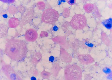 celulas humanas: Las células anormales células de color rosa con el microscopio