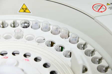 analyzer: automate analyzer chemistry in laboratory. Stock Photo