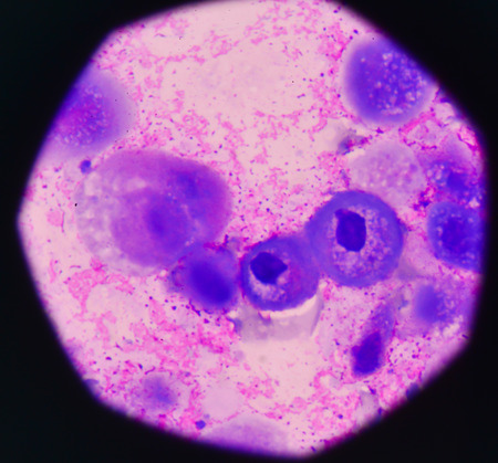 cancer screening: Cancer Cell in human showing abnormal cells.Medical science background concept.