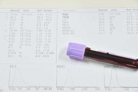 complete blood count: Blood test for Complete Blood Count. CBC medical science background concept. Stock Photo