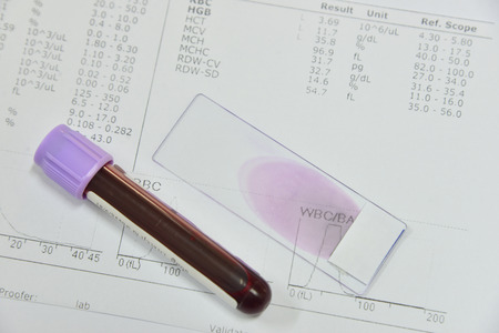 globulos blancos: Blood test for Complete Blood Count. CBC medical science background concept. Foto de archivo