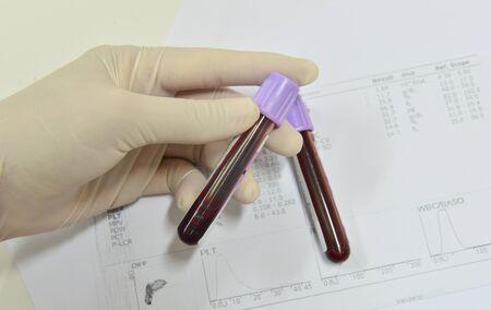 red tube: Análisis de sangre para recuento completo de sangre. CBC ciencia médica del concepto del fondo.