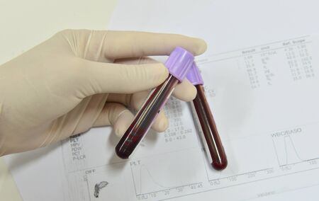 cbc: Blood test for Complete Blood Count. CBC medical science background concept. Stock Photo