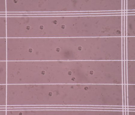 white blood cells: Fresh white blood cells in CSF fluid sample on scale counting chamber