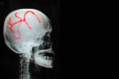 cva: View of film x-ray skull of human in black background.