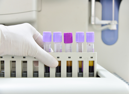 automate: Automate analyzer complete blood count in laboratory.