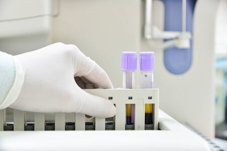 analyzer: Automate analyzer complete blood count in laboratory.