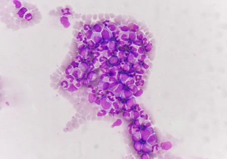 leucemia: foto sangre de la leucemia. Foto de archivo