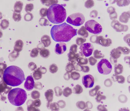 leukemia: Leukemia blood picture.