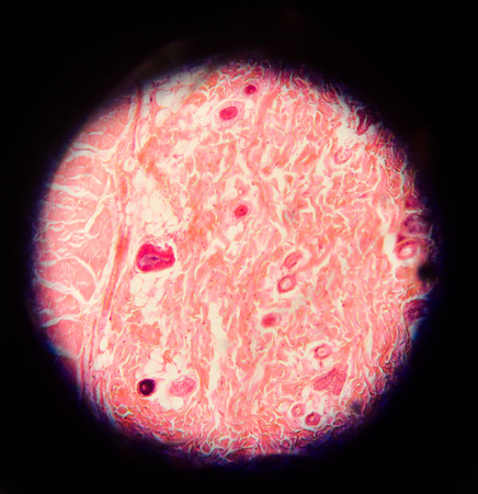 malignant neoplasm: body cells human with microscope.