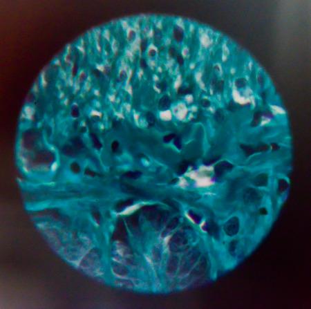 antigenic: body cells human with microscope.
