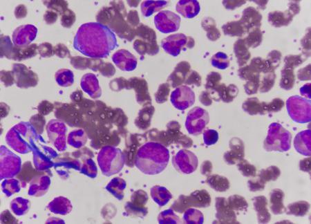 leukemia: Blast cells in Leukemia Stock Photo
