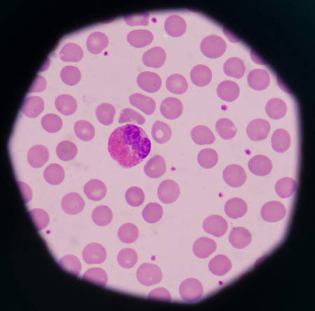 white blood cells Eosinophil on red blood cells background.