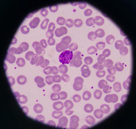 white blood cells Basophil on red blood cells background.