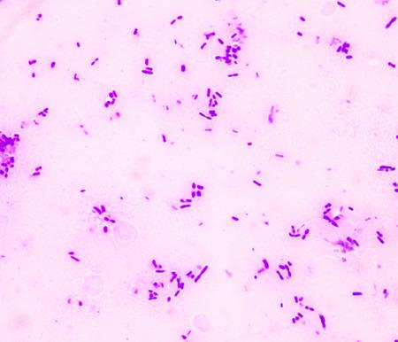 levadura: incipiente estructura de célula de levadura fondo de la ciencia médica. Foto de archivo