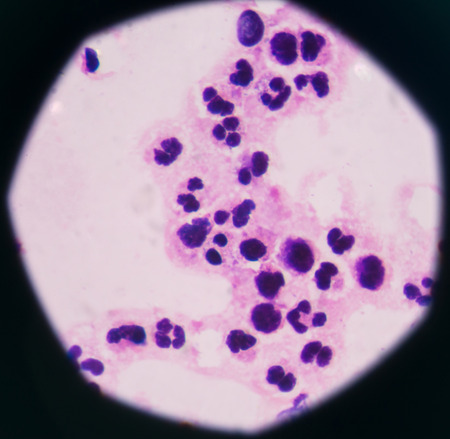 respond: abnormal neutrophil in pleural fluid smear.Sepsis or septicaemia is a life-threatening illness. Presence of numerous bacteria in the blood, causes the body to respond in organ dysfunction.
