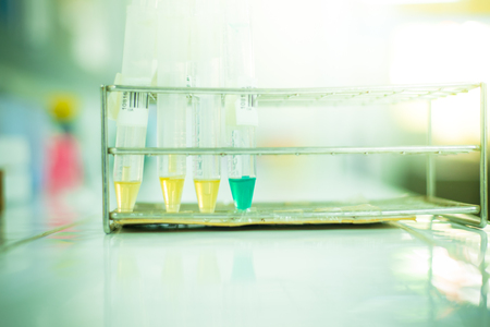 complication: Blue urine complication of drug and normal yellow urine in laboratory testing. Stock Photo