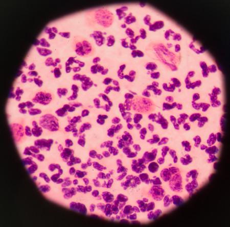 effusion: Moderate white blood cells inflammatory response.